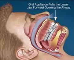 MAD posizionato a livello delle arcate dentali.